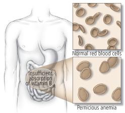 pernisiøs anemi