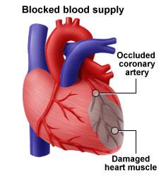 hva skjer i hjertet ved et hjerteinfarkt