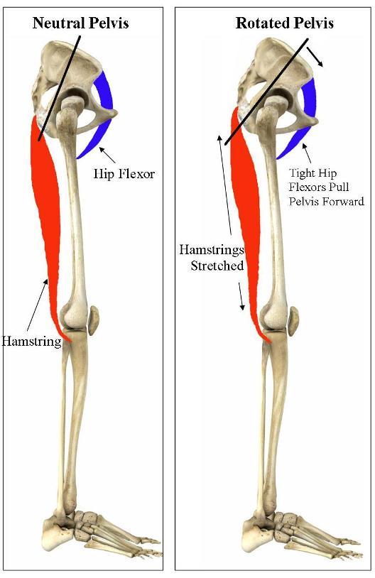 rotated-pelvis