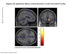 fMRI-bildene fra Lennerz og kolleger(1)
