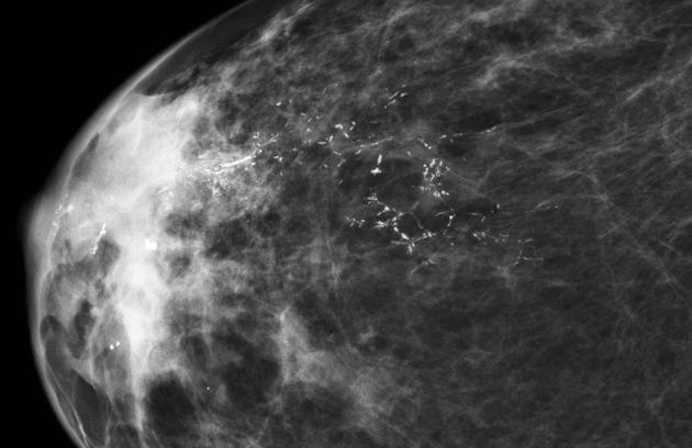 brystkreft 2